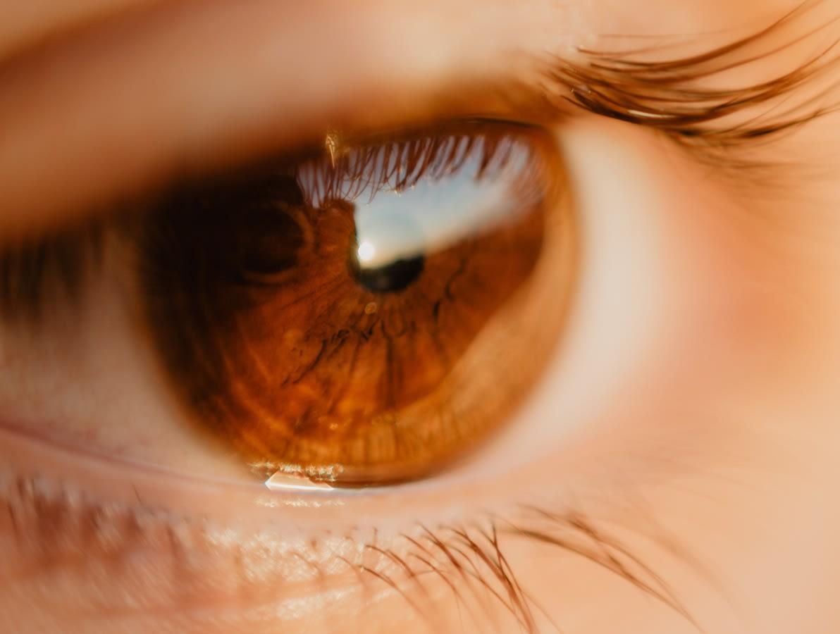 Hvad er brydningsfejl eller astigmatisme?